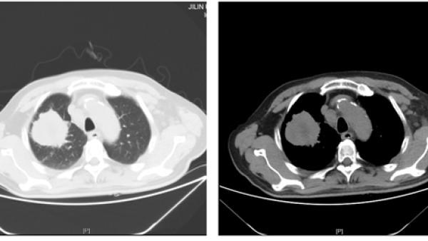 IV期肺癌患者应用PD-L1单抗治疗大PR