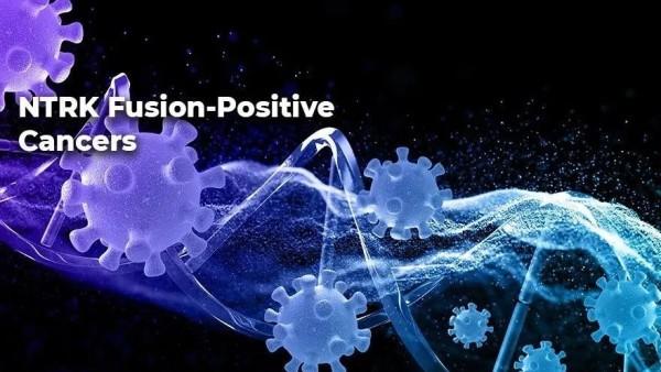 """覆盖超过20类癌症,泛癌种""""钻石""""靶点NTRK融合检测指南及最新药物进展!"""