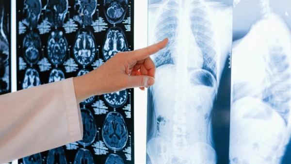 结肠癌术后合并可疑小病灶时怎么办?