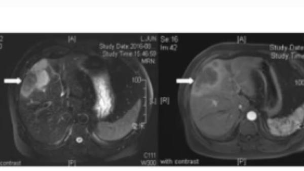 已长期生存近5年!免疫联合靶向胆管癌领域再创辉煌!