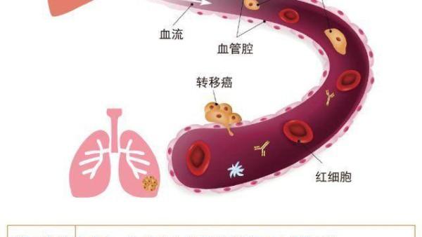 常见八大肿瘤转移途径,1张图了解