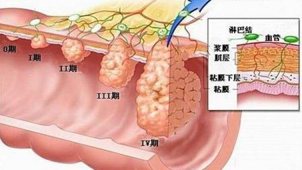 结肠癌发展到肠周淋巴结转移,对生存有多大影响?