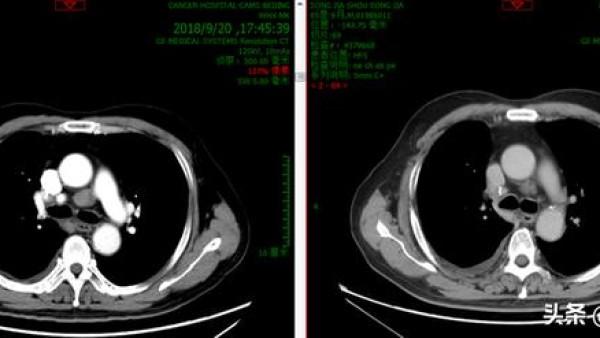 替雷利珠单抗肺鳞癌一线治疗客观缓解率达74.8%! 多学科会诊经典案例解析